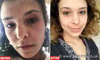 Shocking before and after pictures of eczema-stricken student with steroid withdrawal