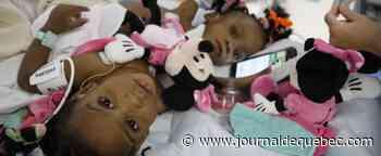 Succès de l'opération du coeur de l'ex-petite siamoise camerounaise