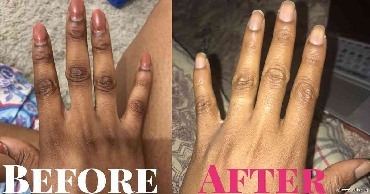 You can clear your dark knuckles with baking soda lime...here's how