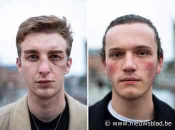 """Bruce en Nick werden slachtoffer van gaybashing in Gent: """"Mag iedereen hier nog zichzelf zijn?"""""""