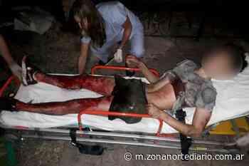 Carapachay: un empleado judicial hirió a balazos a dos delincuentes adolescentes - Zona Norte Diario OnLine