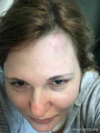 Investigative Journalist, Lawyer Attacked in Grozny - OCCRP