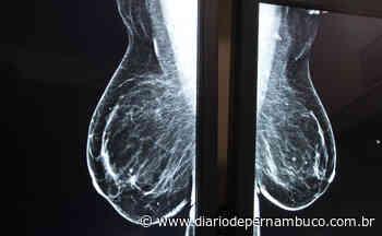 Confira o calendário do mamógrafo móvel no Cabo de Santo Agostinho - Diário de Pernambuco