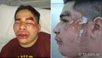 """Un joven fue golpeado en San Antonio de Areco y su familia denuncia que fue """"por ser rugbier"""" - TN - Todo Noticias"""