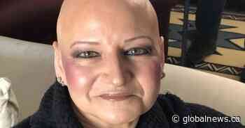 Going bald: Female blogger tries to lessen the stigma associated with hair loss