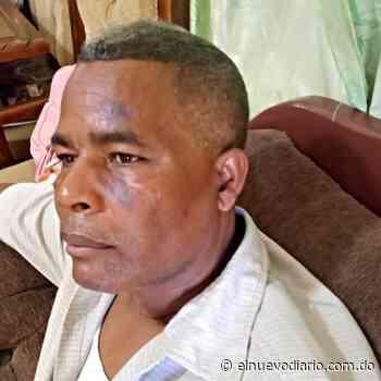 """VIDEO: Hombre denuncia candidato a regidor de Las Matas de Farfán le propina """"golpiza"""" por no apoyarlo - El Nuevo Diario (República Dominicana)"""