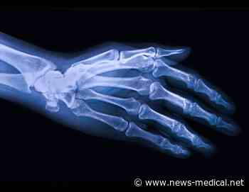 Newly developed mobile app helps reduce pain in osteoarthritis patients