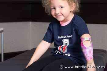 Holland Landing 'CHAMP' highlights Limb Loss Awareness Month - BradfordToday