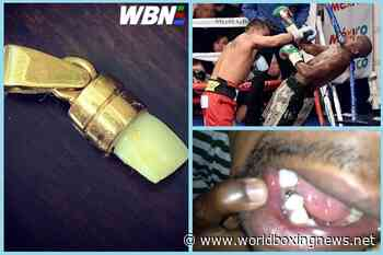 Footage of exact moment Floyd Mayweather lost tooth to Marcos Maidana - WBN - World Boxing News