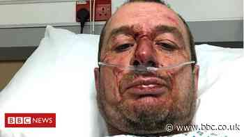 Injured cyclist 'deliberately' struck in York hit-and-run