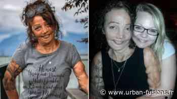 Gran a presque brûlé vif alors qu'un enfant a défié la mort pour survivre et prospérer | WTF - Urban Fusions