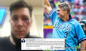George Floyd protests: Police shoot Dale Murphy's son in eye