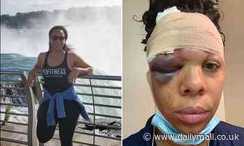 Protester, 34, suffers CRACKED SKULL after Florida police shot foam rubber bullet at her head