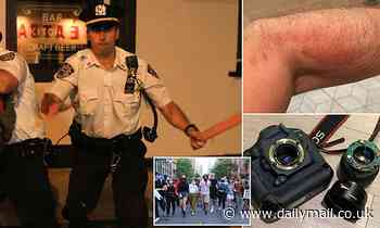 Photojournalist tells how he was beaten up by cops as he covered peaceful BLM march in NYC