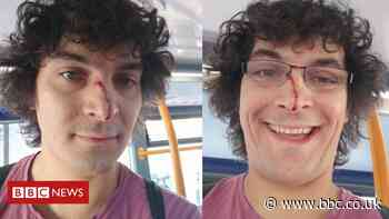 Hove walker hurt intervening in alleged domestic abuse