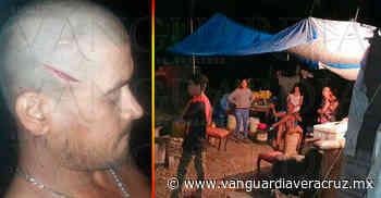 Agreden a machetazos a un obrero en Tuxpan - Vanguardia de Veracruz - Vanguardia de Veracruz