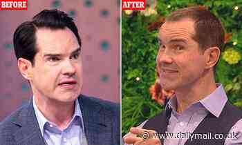 Jimmy Carr reveals he's had a HAIR TRANSPLANT as he shows off his new look
