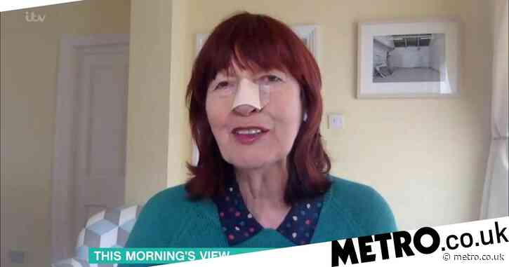 Loose Women's Janet Street-Porter wears bandage on nose during This Morning interview after she had skin cancer removed