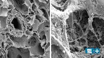 Forscher der Uni Witten/Herdecke entschlüsseln Coronavirus - WP News