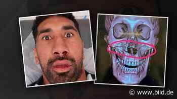 Rugby: Star scherzt nach Horror-Crash über Gesichts-Fraktur - BILD