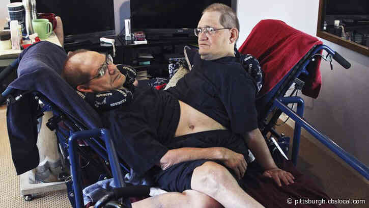 World's Longest-Surviving Conjoined Twins Die At 68