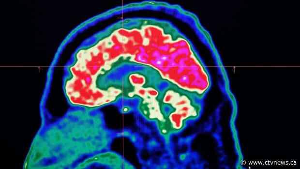 Brain problems linked to even mild coronavirus infections: study