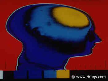 Huntington Disease Brain Changes ID'd 24 Years Before Symptoms