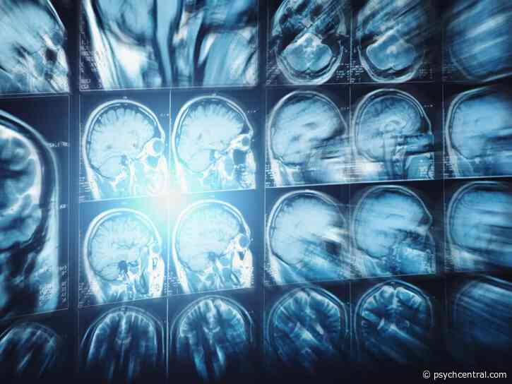 Brain Imaging Shows Shared Patterns in Major Mental Disorders