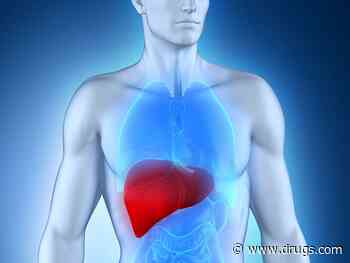 Viral Exposure Signature Predicts Hepatocellular Carcinoma