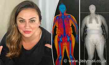 Married At First Sight's Mishel Karen shares body fat scans taken before weight loss journey