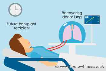 Severely damaged human lungs 'can be successfully recovered for transplant' - Harrow Times