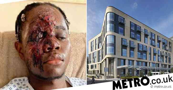 NHS worker 'lucky to be alive' after racists deliberately drove car into him