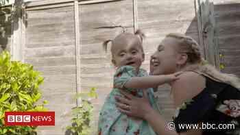 Mum's joy as spina bifida womb op baby walks - BBC News