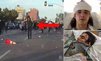 Video shows LA protester shot with rubber bullet had hands up