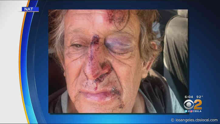 73-Year-Old Man Beaten By Group Of Men In South LA Attempted Robbery