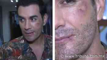 VIDEO: Querido galán de Televisa aparece en 'Hoy' totalmente 'golpeado' - TRIBUNA