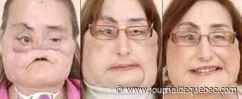 Décès de la première Américaine ayant reçu une greffe du visage