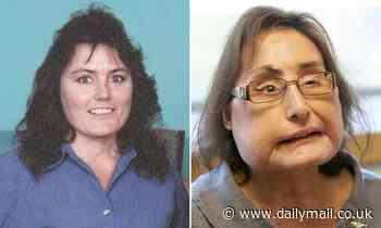 Woman, 57, who underwent the first face transplant in the U.S. dies from an infection