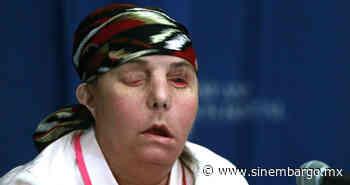Carmen tendrá transplante de rostro. El exesposo, celoso, la bañó de lejía. Quedó ciega, deforme - SinEmbargo