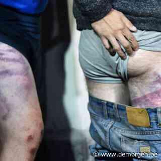 Vrijgelaten burgers in Wit-Rusland tonen hoe ze gemarteld en afgeranseld werden