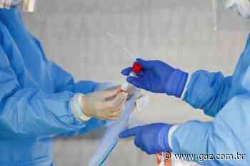 Arroio do Tigre confirma três novos casos de coronavírus - GAZ