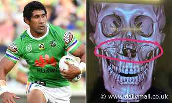 NRL star who suffered gruesome facial injuries in head clash reveals he tried to blend KFC to eat