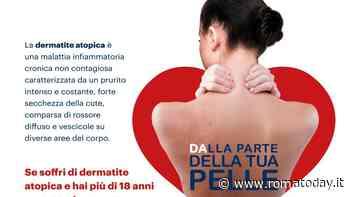 Dermatite atopica dell'adulto: il 26 settembre consulti dermatologici gratuiti a Roma