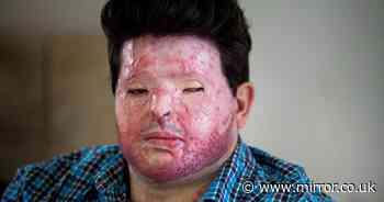 Dad scarred for life in acid attack 'sickened' as yob gets day release