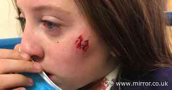 'Petrified' schoolgirl covered in blood after being bitten by stranger's dog