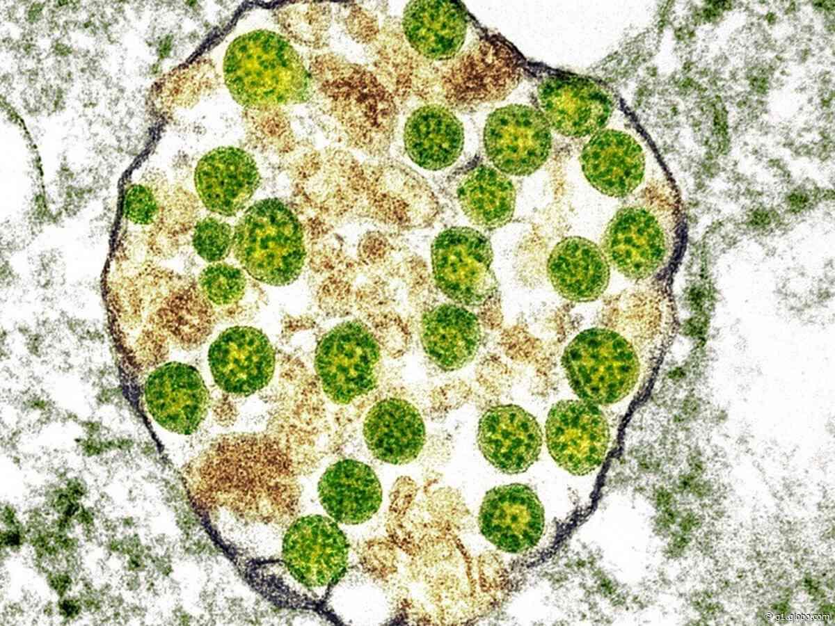 Limeira registra nova morte por coronavírus e região chega a 976; são 40,4 mil casos - G1