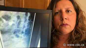 Ontario woman finds needle in her spine 16 years after giving birth