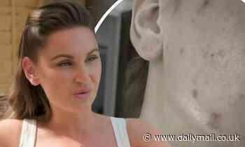 Mummy Diaries: Sam Faiers says she felt like a 'fraud' using filters before revealing acne struggle