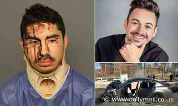 Drunk driver who ran a red light and killed another driver is pictured bloodied in a neck brace