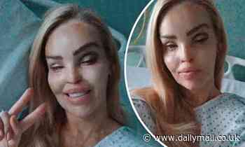 Katie Piper doing well after eye surgery